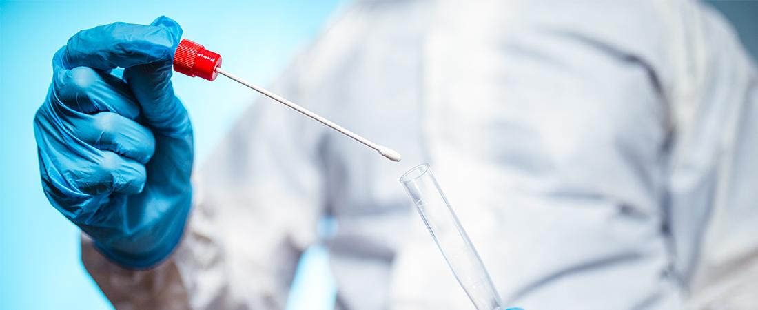 Tamponi molecolari nelle farmacie lombarde